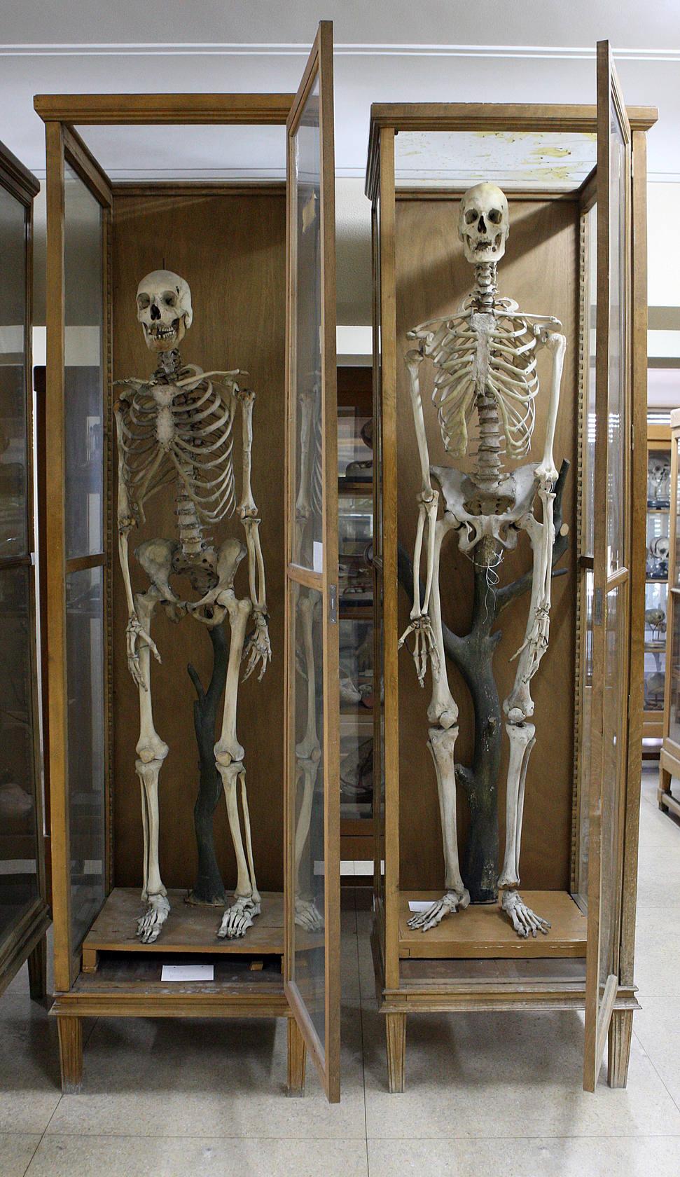 Museo de Anatomía de la Complutense